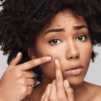 Overcoming your acne fears